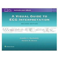 Visual Guide to ECG Interpretation